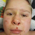 В Днепре жестоко избили 12-летнего мальчика, – СОЦСЕТИ